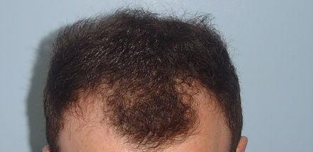 Caso clinico: prima del trapianto capelli FUE