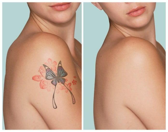 rimozione tatuaggi laser abruzzo pescara chieti teramo l'aquila