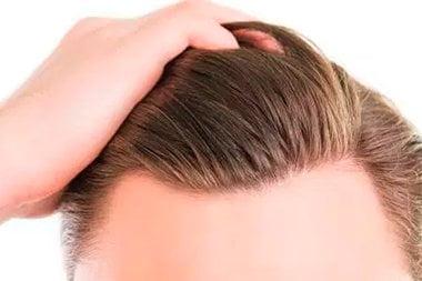 trapianto capelli fue biorigeneral clinic donato zizi
