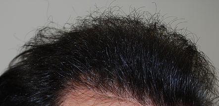 trapianto capelli prima dopo