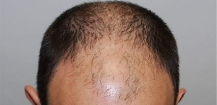 trapianto capelli risultato